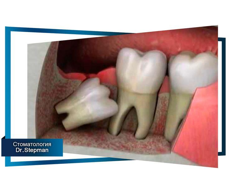 Симптомы и лечение перикоронарита. Часть 1. #полезное #статья #зубы #стоматология  Смотри все части статей по этому хэштегу 📌#лечениеперикоронарита  Перикоронаритом или перикоронитом называется заболевание, обусловленное воспалением десны, которая окружает зуб при затрудненном или неполном прорезывании зуба. Частично прорезавшийся зуб не полностью или полностью покрыт десной, которая формирует капюшон. Именно воспалительный процесс капюшона десны и называют перикоронаритом.  Основными…