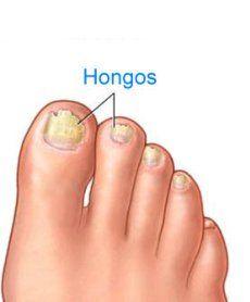 El hongo inveterado de las uñas en los pies el tratamiento el foro