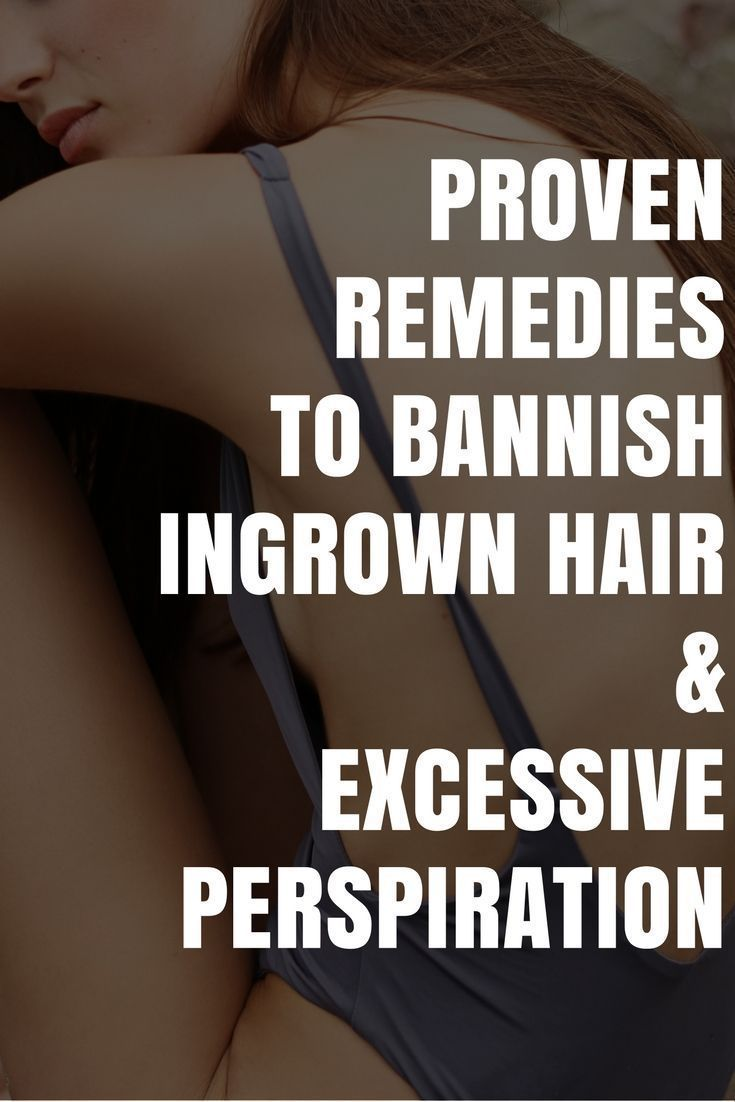 5 Hidden Gems to a Healthier Skin | Struggling with dry, ashy skin, ingrown hair and excessive perspiration? Look no further. Here's how to get rid of ingrown hairs and excessive sweating plus all the products you need to take care of it. Read the post to get the details.