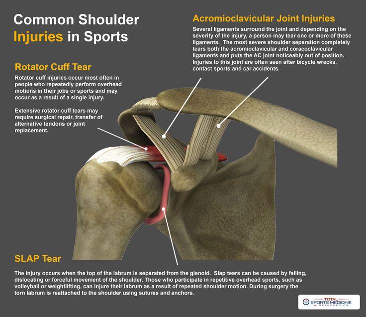 16 best Shoulder Injuries images on Pinterest | Shoulder injuries ...