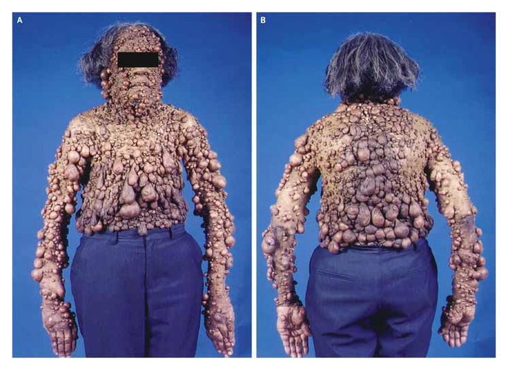 Neurofibromatosis disease Variable expressivity means this disease may result in the extreme, or in almost no manifestation, even in siblings both with the disease.