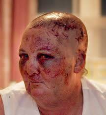 pitbull attack scars