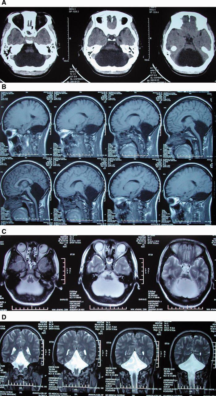 woman reaches 24 w/out cerebellum