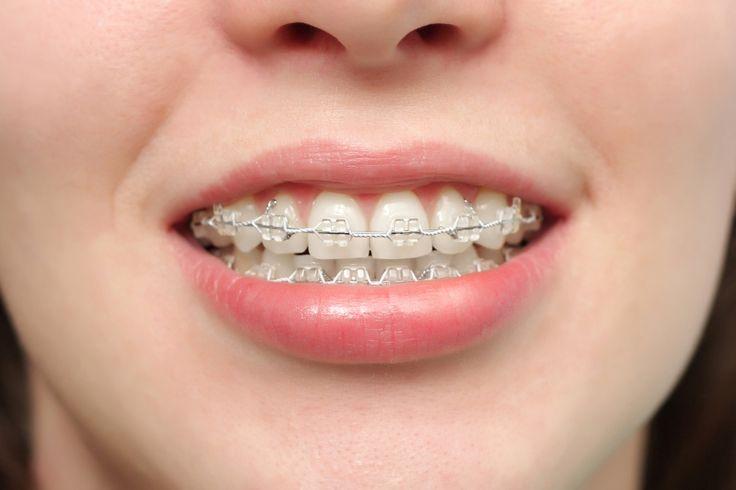 Xác định tại sao răng lại bị hô là căn cứ lựa chọn giải pháp chữa răng hô triệt để