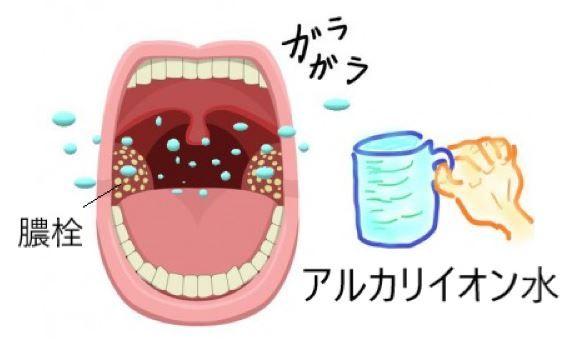 取り方 膿栓
