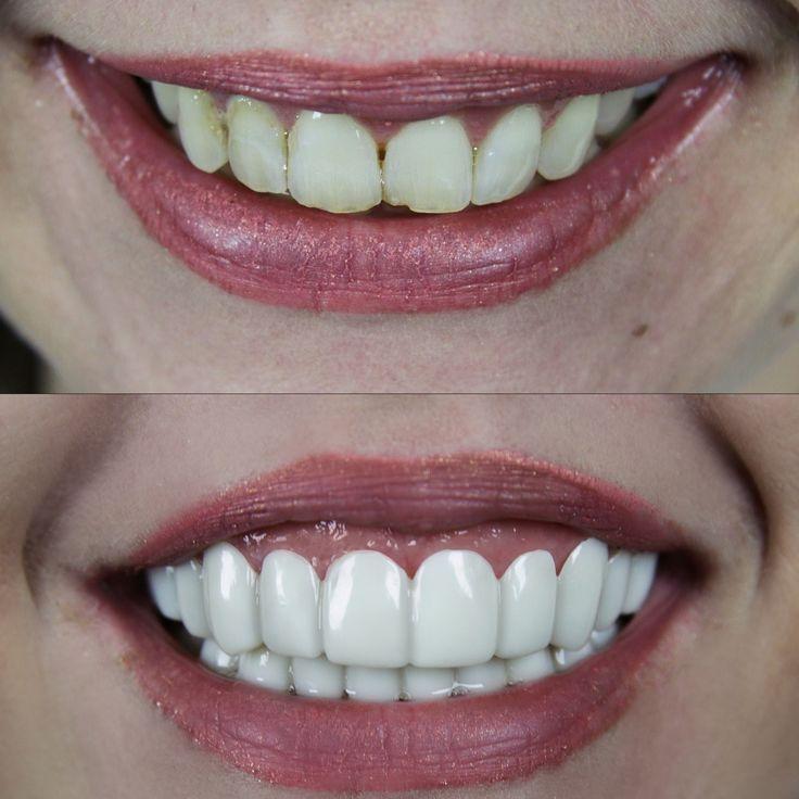 Amazing Smile Makeover Dental Veneers Lab Direct No Dentist Visit Clip On Veneers