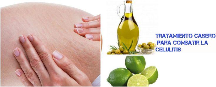 Tratamiento anticelulítico con aceite de oliva y limón