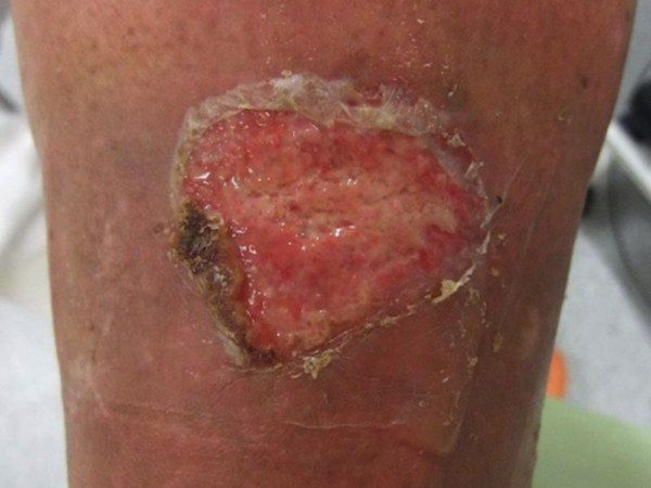 Ulcus cruris venosum Careful debridement before the therapy | lymphatic system activation in groin and knee area as well as in the superficial lymph streams. Here: Before the laser treatment.