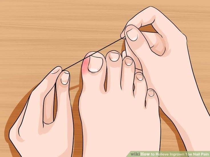 10 BEST NATURAL REMEDIES FOR INGROWN TOE NAILS   Remedies, Natural ...