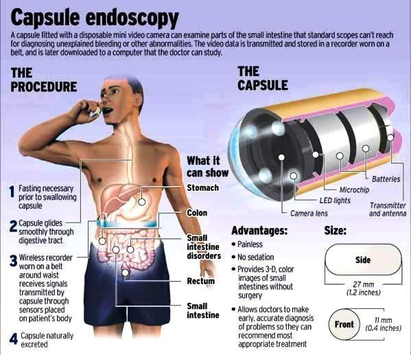 Understanding Capsule Endoscopy - Manhattan Gastroenterology