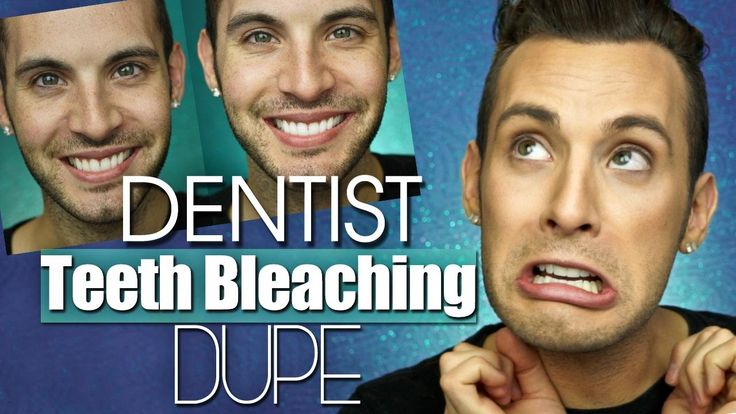 Testing a DENTIST TEETH BLEACHING Dupe + Big Giveaway http://reviewscircle.com/health-fitness/dental-health/natural-teeth-whitening/