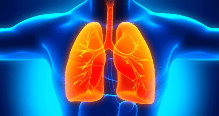 La MPOC ou la maladie pulmonaire obstructive chronique est un terme générique qui est utilisé pour décrire la maladie pulmonaire progressive. Les maladies