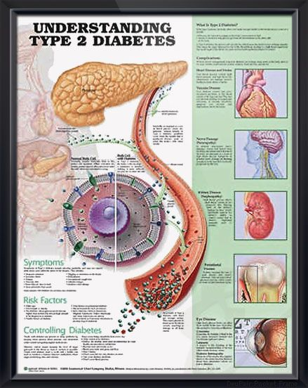 Understanding Type 2 Diabetes anatomy poster lists symptoms, risk factors, ways to control diabetes type 2, showing glucose molecules and cell. Endocrinology chart for doctors and nurses.