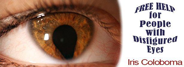 Iris Coloboma - Disfigured Eye Help | Medcorp International Blog