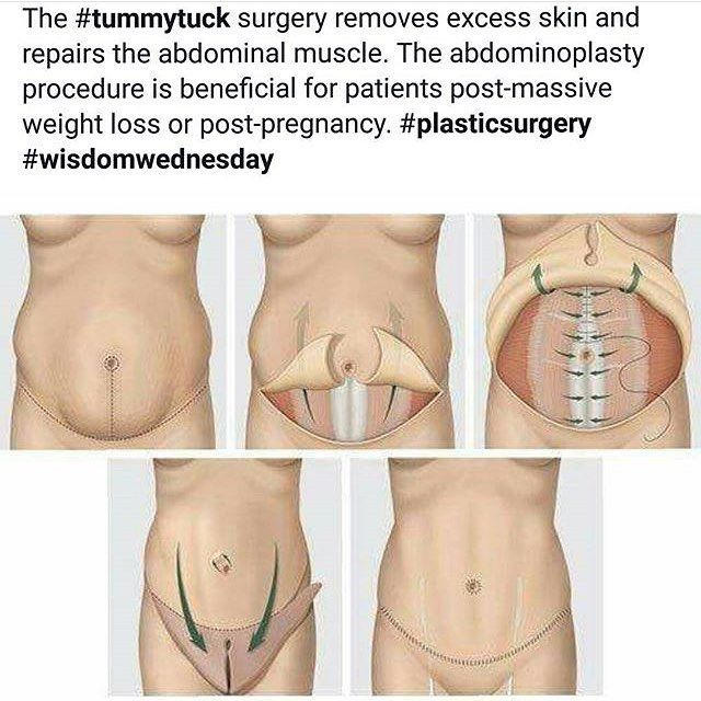 Tummy tuck's are one of our most popular procedures as they help moms and weigh loss patients re-tighten the stomach area that exercise and diet can't fix. Thinking you might be a candidate? Consultations are always free with Dr. Ronan.