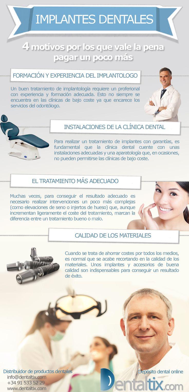 Implantes dentales: 4 motivos por los que vale la pena pagar un poco más