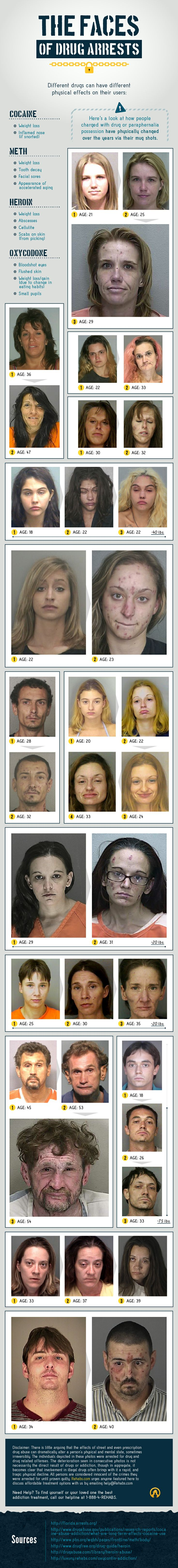 These Photos Show How #Heroin, #Cocaine and #Oxycodone Change Your Appearance Over Time