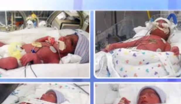 Nati 4 gemelli identici: evento rarissimo. E guarda il video: una mamma cinese ha rasato la testa ai suoi figli con il numero di nascita....