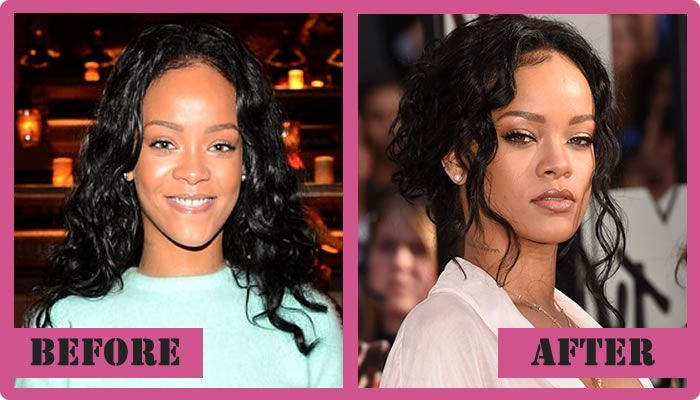 Rihanna Plastic Surgery Before And After Rihanna Plastic Surgery  #Rihannaplasticsurgery #Rihanna #gossipmagazines