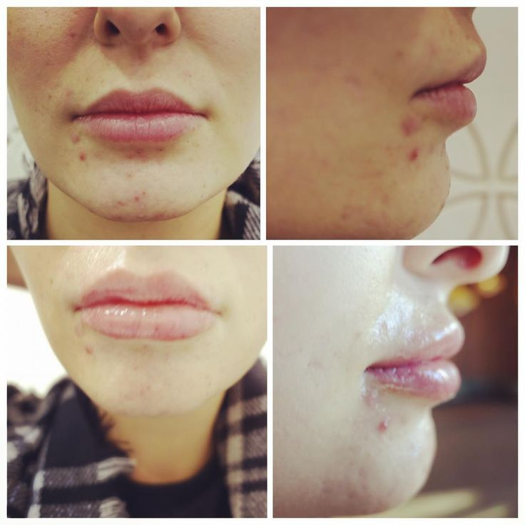 This forum member just had 1ml juvederm ultra injected into her lips #beforeandafter #juvederm #fillers #plasticsurgeon #plasticsurgery #plasticsurgeryforum #plasticsurgerymakeover #before #after #aesthetics #cosmeticprocedures #cosmeticsurgery #cosmetics #lips #enhancement