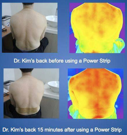 Infrared Scans Show Increased Heat  Circulation Within 15 Minutes of Applying a PowerStrip.