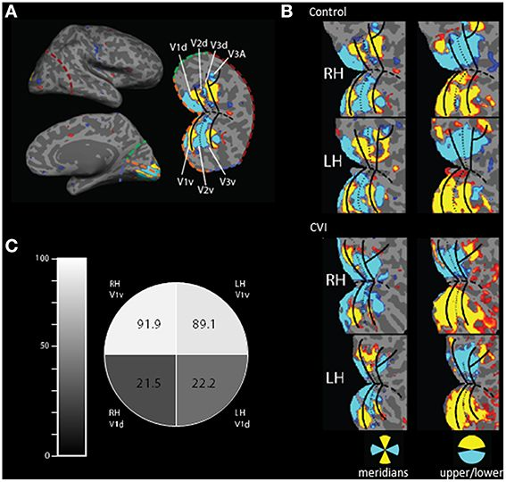 179 Best Cortical Visual Impairment Cvi Images On