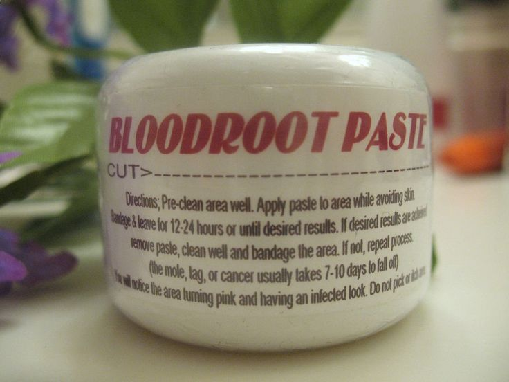 Epic Bloodroot Paste Black Salve Warts Moles Skin Tags Sarcoids remover blood root in Health Beauty