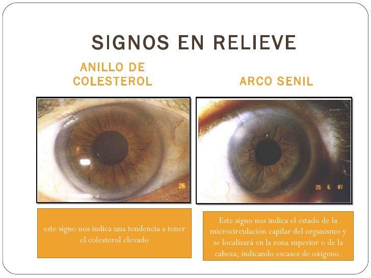 SIGNOS EN RELIEVE <ul><li>ANILLO DE COLESTEROL </li></ul><ul><li>ARCO SENIL </li></ul>Este signo nos indica el estado de l...