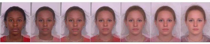 hyperpigmentation pictures pigmentation definition