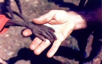 La famine dans le monde