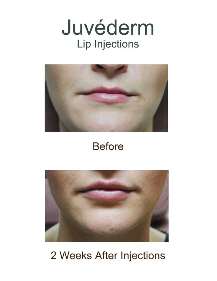 Before And After Juvederm A Dermal Filler Lip Injections