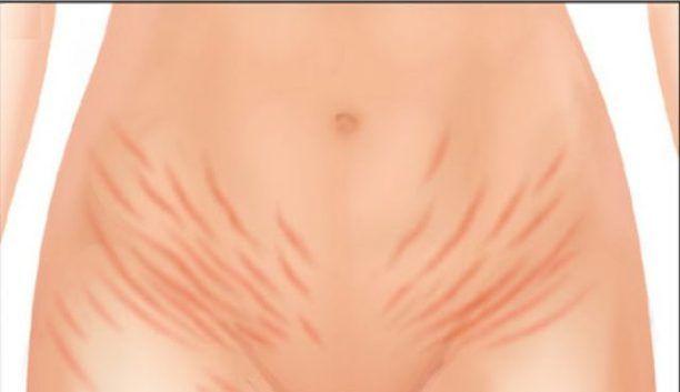 Koža – najväčší orgán ľudského tela, ktorý je prepojený so všetkými ďalšími inštitúciami. Dnes zistíte, čo je potrebné urobiť, aby ste sa zbavili strií na koži. Ak niekto hovorí, že je to nemožné, …