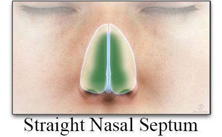 Straight Nasal Septum