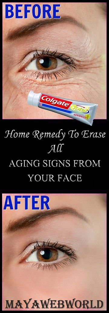 Step 1 – Pack For this you will need A plain toothpaste, do not use any gel based toothpaste (Use plain colgate) Tomato juice Vitamin E capsule Aloe vera gel First in a clean bowl take half spoon …