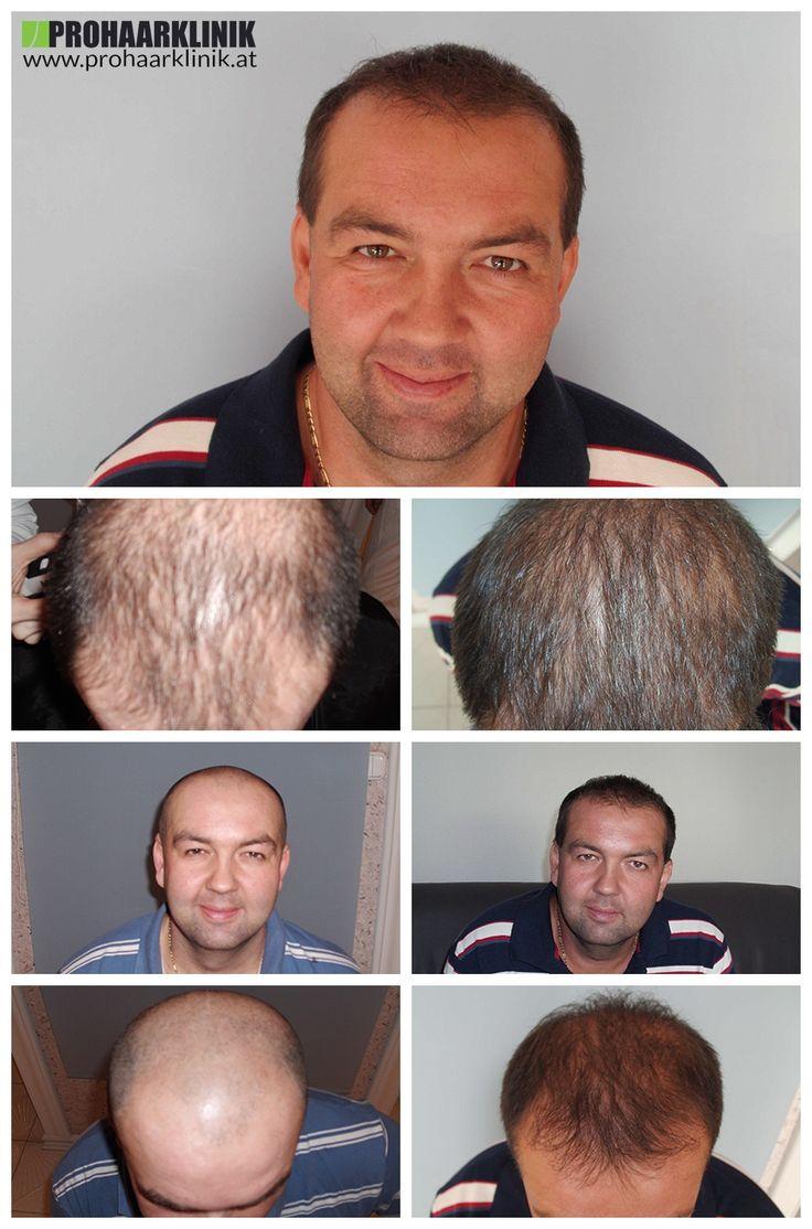 http://www.prohaarklinik.at/haartransplantation-vorher-nachher-bilder/  FUE Haartransplantation 8000+ - PROHAARKLINIK  Zoltan hatte einen großen und schweren Haarausfall Zone auf der Oberseite seines Kopfes. Wir wurden herausgefordert, um eine Haartransplantation durchzuführen, mit dem die meisten natürlichen Haaransatz zu schaffen. Er hatte eine 2 Tage langen Behandlung bei PROHAARKLINIK.