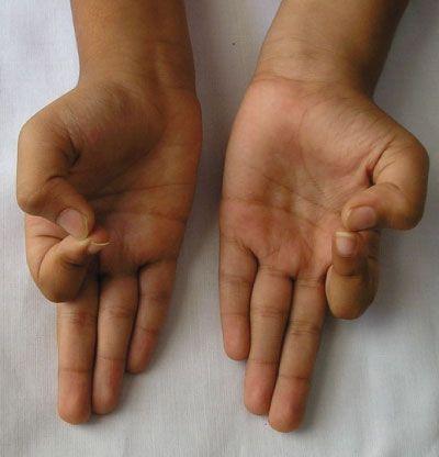 Ułóż dłonie w ten określony sposób. Nie uwierzysz jak zaskakujące efekty to przyniesie | Popularne.live