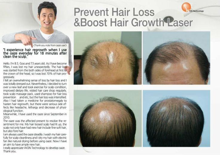 90 Best Laser Hair Device Images On Pinterest Hair