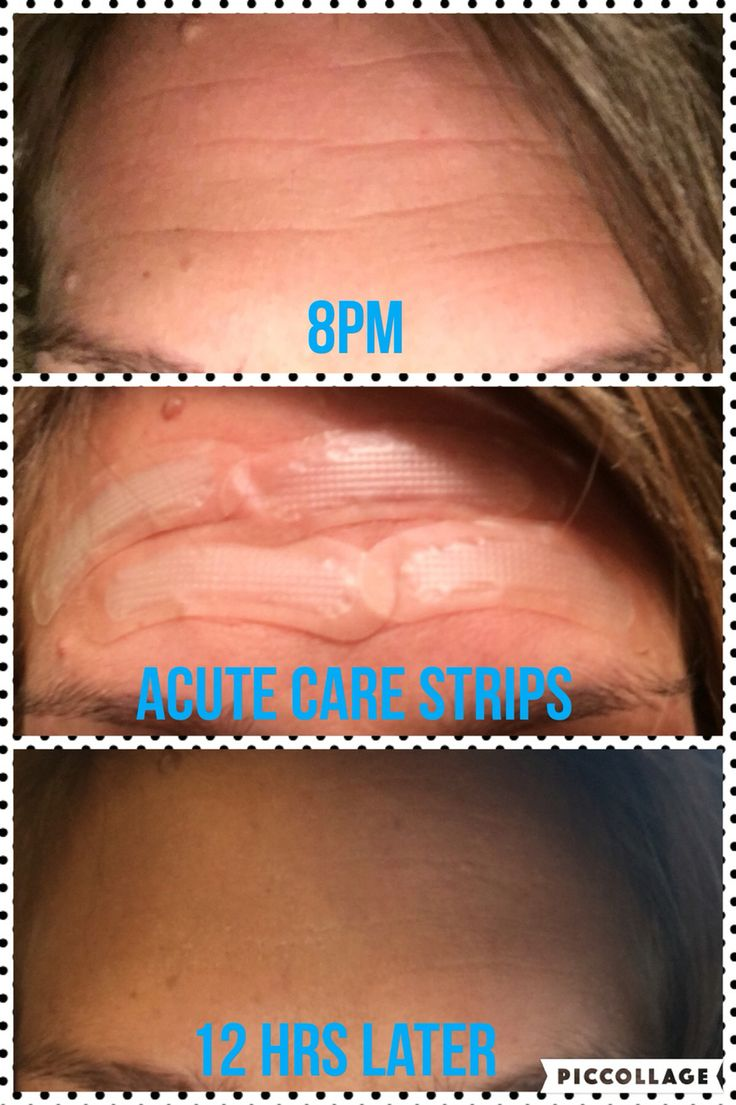 Rodan & Fields ACUTE CARE STRIPS (fill a wrinkle while you sleep) YEAH they're that good!!!! smarten.myrandf.com