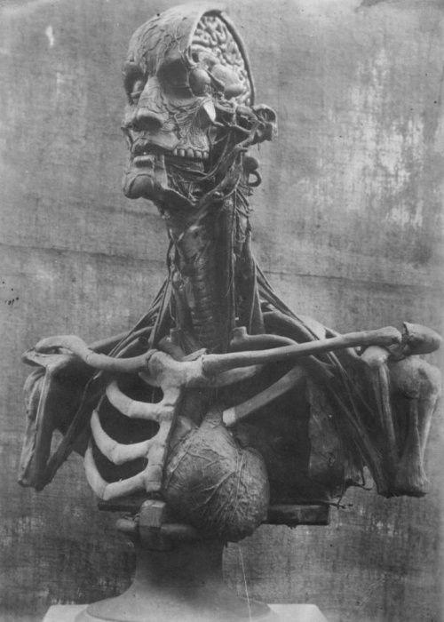 Enlarged anatomical head, 1860–1864. Model by Paul Zeiller      Paul Zeiller