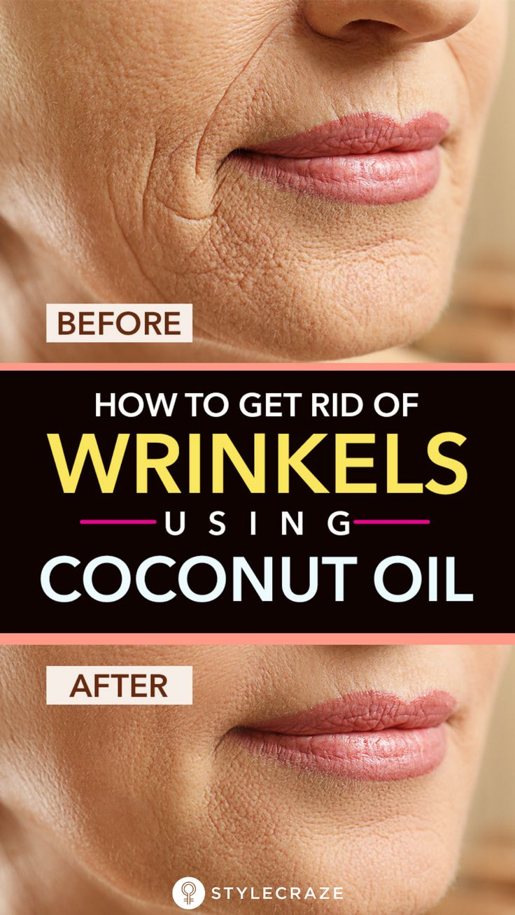 How To Get Rid Of Wrinkles Using Coconut Oil: Are you constantly worried about the signs of aging on your face? Do you think wrinkles and dark spots are ruining your beauty? If yes, you have to start including coconut oil in your skin care routine. It is natural, effective, and absolutely safe. Read on to know more about this awesome ingredient. #Remedies #NaturalRemedies #Wrinkles #SkinCare #BeautyTips