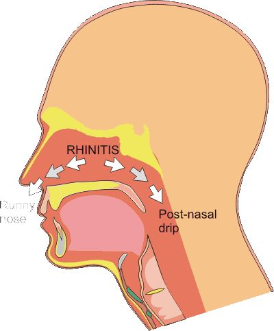 Post Nasal Drip Clearing Throat 94