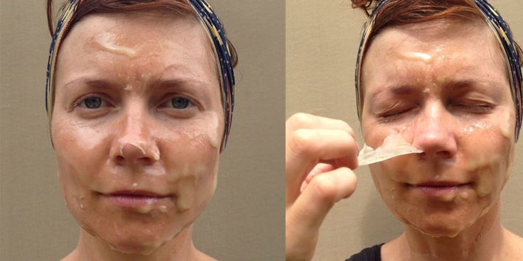 A DIY facial peel for blackheads