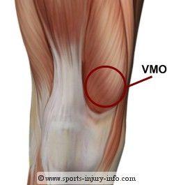 TOP 10 EXERCISES TO STRENGTHEN VMO (Vastus Medialis Obliquus) : The Injured Knee