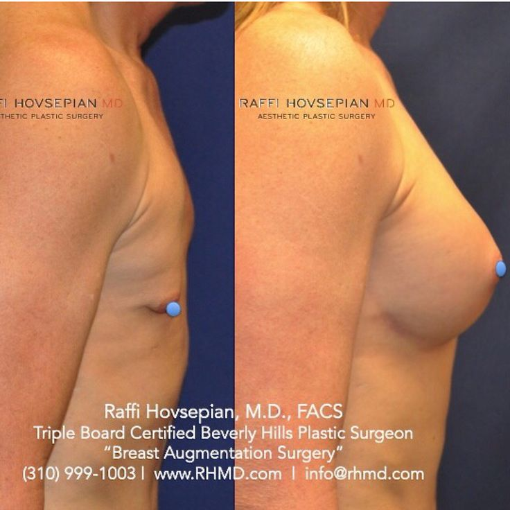 Augmentation surgery breast