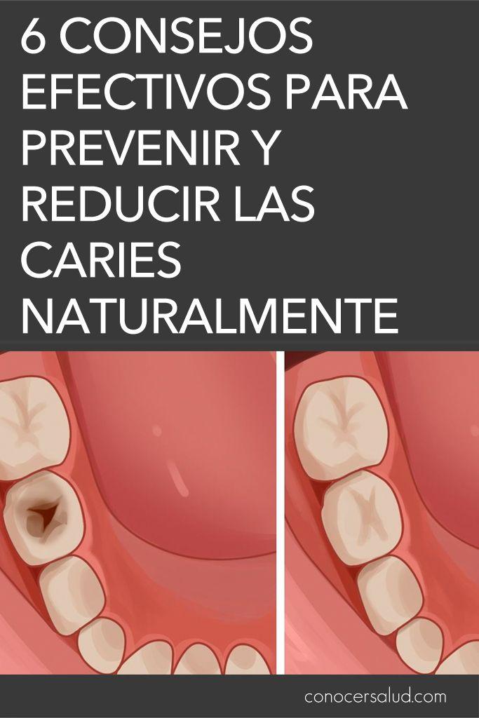 6 consejos efectivos para prevenir y reducir las caries naturalmente #salud