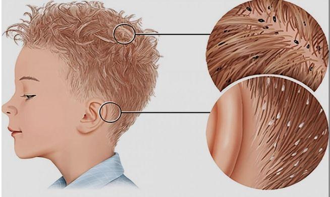علاج القمل و الصيبان Hair Meaning Home Remedies For Hair Hair Remedies