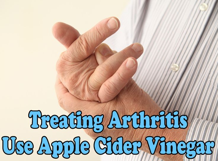 gout treatment fast gouty arthritis normal uric acid management of gout in the presence of chronic kidney disease