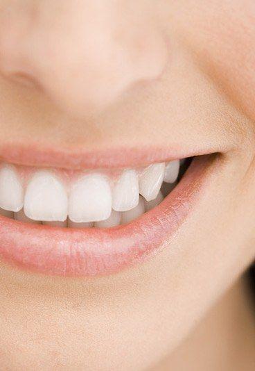 Weiße Zähne - Zahnpflege - Weiße, strahlende Zähne sorgen für ein selbstbewusstes Lächeln. Stärkere Beläge, durch Tee, Koffein, Nikotin oder Rotwein verursacht, lassen...