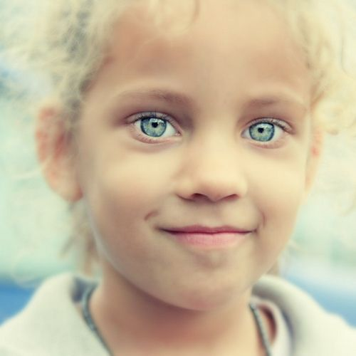 Dr Spex Vision Care Home: De 23 Bästa Waardenburg Syndrome-bilderna På Pinterest