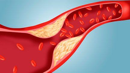 Prírodný prípravok na zníženie cholesterolu | Cholestifin® SK